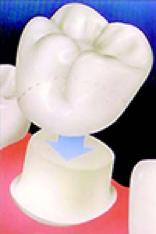 Dental Crown Ipswich Dentist