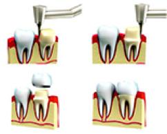 Dental Crowns Proceedure Ipswich