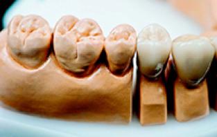 Dental Crowns in Ipswich