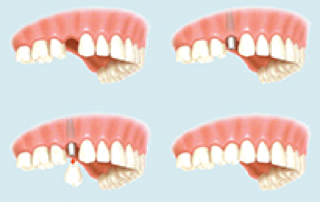 Dental Implants in Ipswich